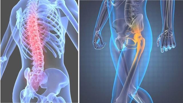 Как распознать заболевание суставов