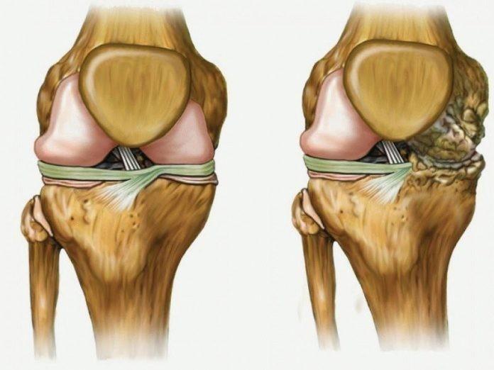 Самый популярный рецепт в мире! Лечит ваши колени, восстанавливает кости и суставы в кратчайшие сроки!