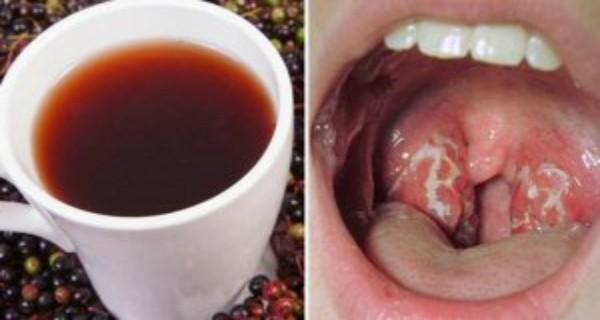 Как избавиться от инфекции горла, всего за 4 часа!
