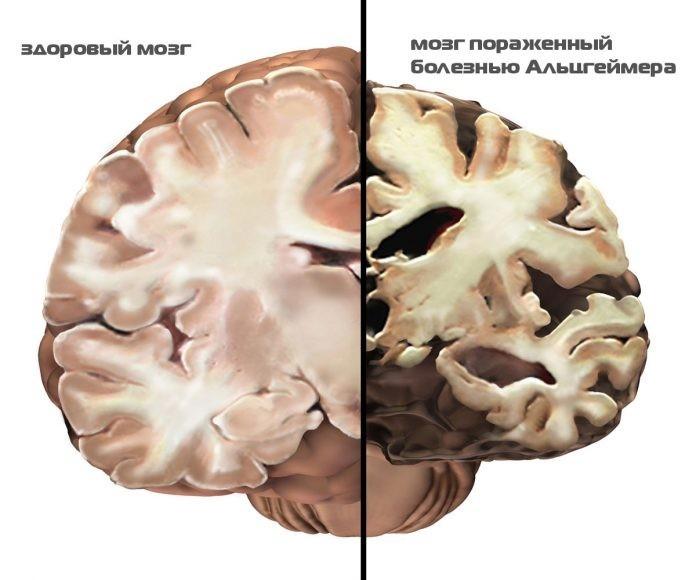 Забывчивость или первые признаки Альцгеймера? Вот где граница!