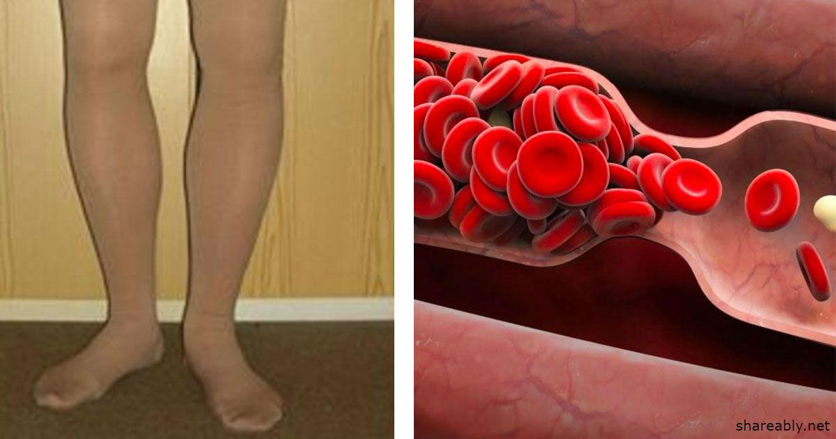 8 признаков тромбоза, которые ни в коем случае нельзя игнорировать!