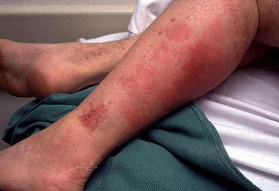 Лечение рожистого воспаления ноги народными средствами
