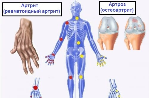 Разница между артрозом, артритом и остеопорозом