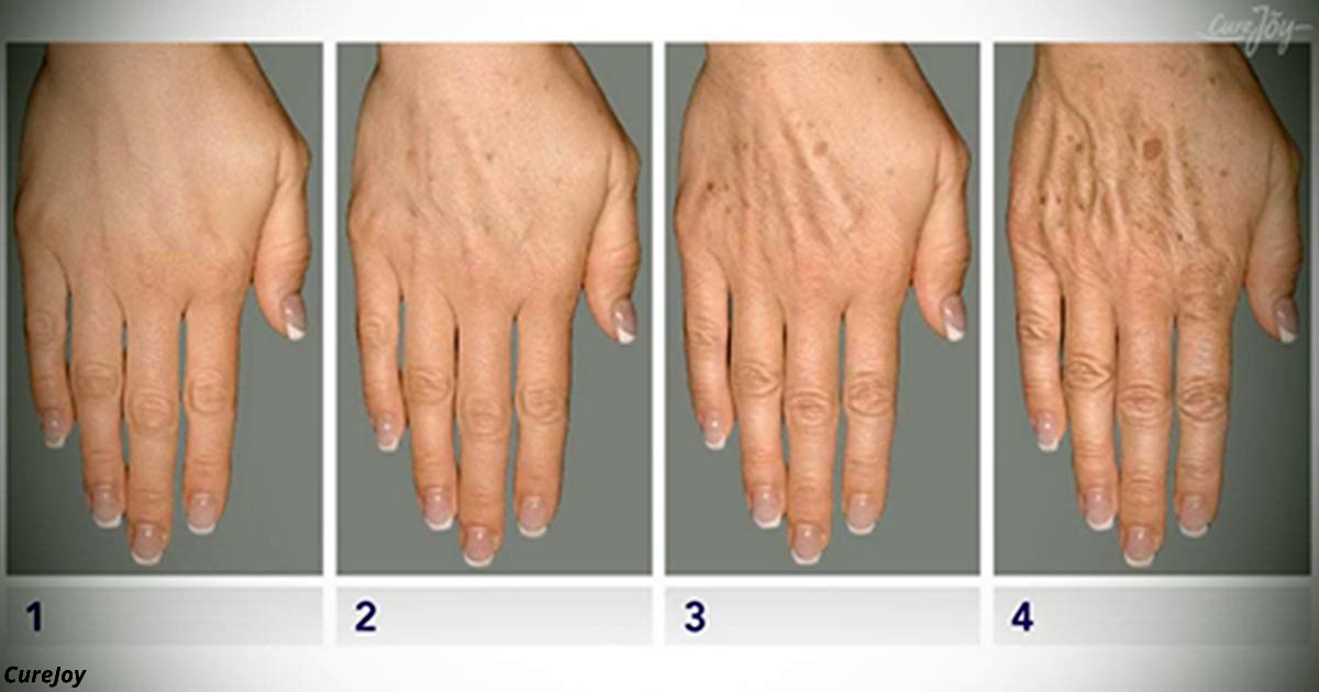 Как защитить свои руки от старости: Вот 3 признака, что все плохо, и 5 способов все исправить