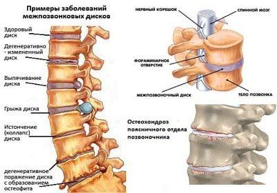 Симптомы и лечение поясничного остеохондроза в домашних условиях