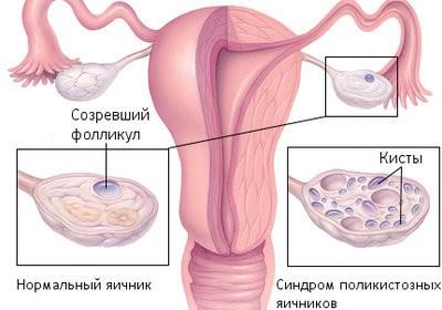 Лечение поликистоза яичников травами