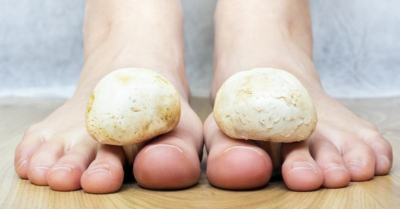 Как и чем лечить запущенный грибок ногтей на ногах