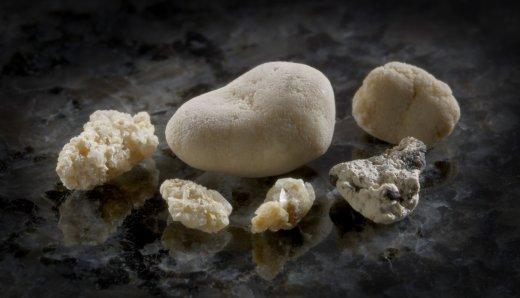 Камни в почках - 9 из 10 могут выйти сами
