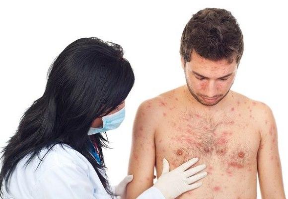 Корь — опасная болезнь для детей и взрослых