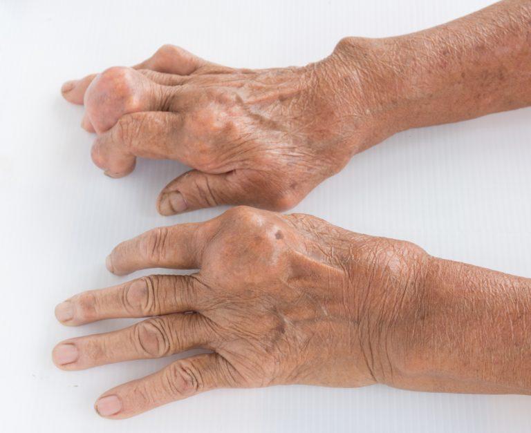 Подагра – болезнь богатых. Лечение и профилактика