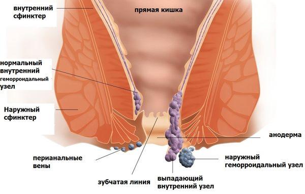 Геморрой — болезнь современных людей