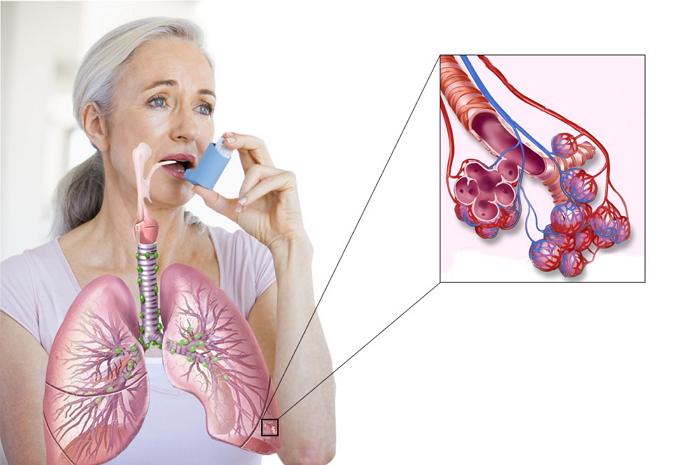 Лечение бронхиальной астмы, диагностика, симптомы