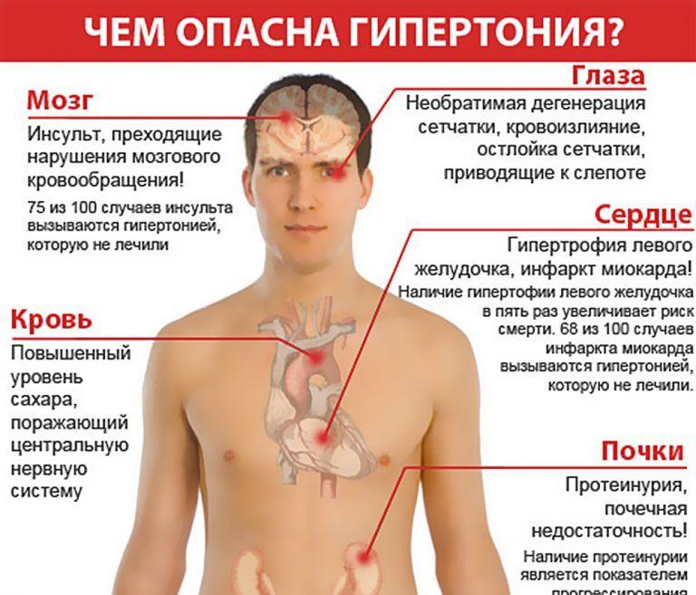 Гипертония (артериальная гипертензия): симптомы болезни, лечение и профилактика