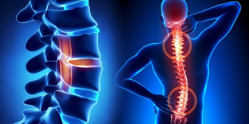 Болезнь Бехтерева - лечение болезни. Симптомы и профилактика