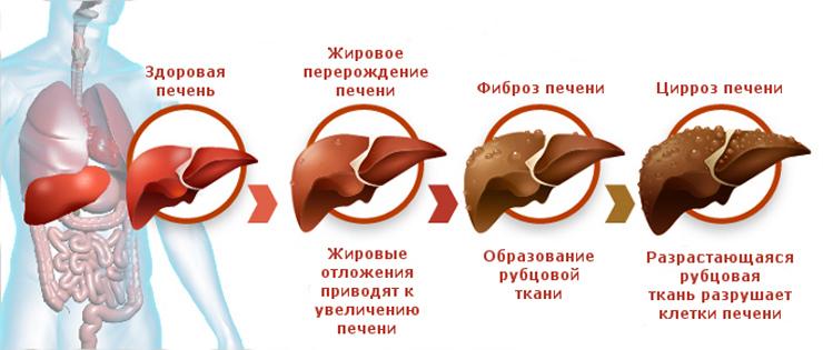 Сколько живут при циррозе печени? - неутешительный прогноз