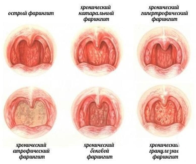 Фарингит и першение в горле: виды, профилактика, описание