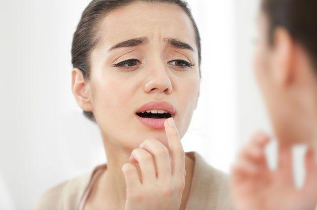 Как быстро вылечить герпес на губах? Простые способы и дельные советы