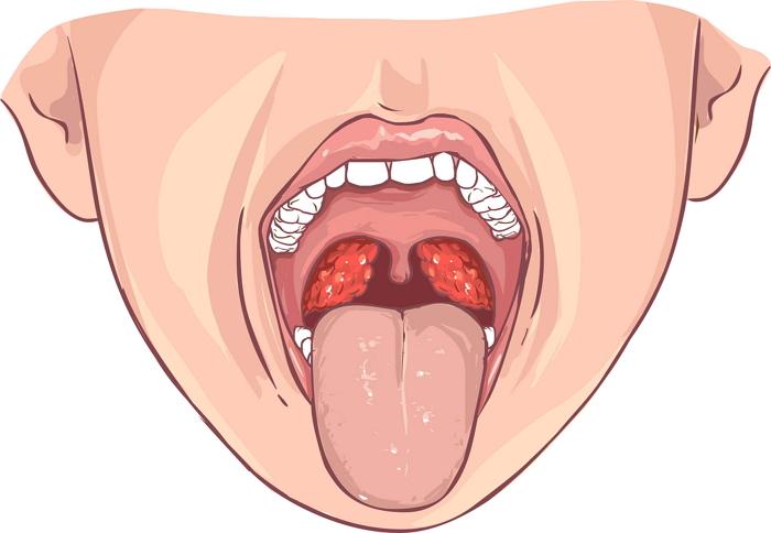 Лечение хронического тонзиллита с гнойными пробками в горле