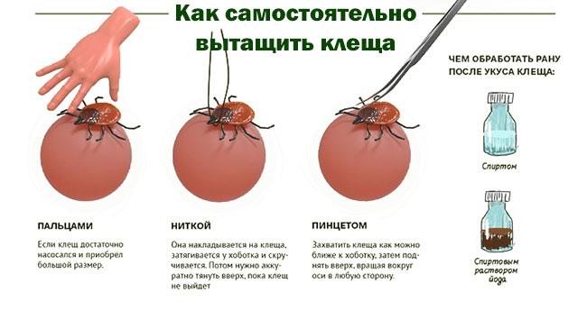 Чем опасны клещи и что делать, если вас укусили
