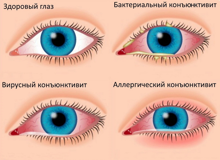 Красные глаза? Это может быть конъюнктивит
