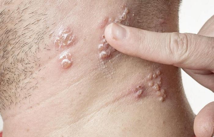 Лишай у человека - симптомы и способы лечения