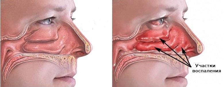 Вазомоторный ринит: 7 причин приводящих к заложенности носа