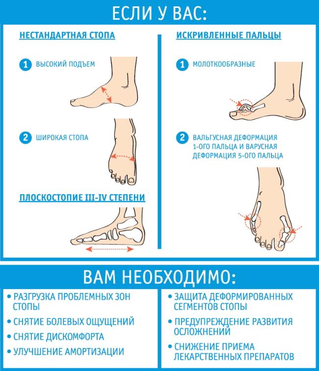 Как правильно выбрать ортопедические стельки при плоскостопии и других заболеваниях