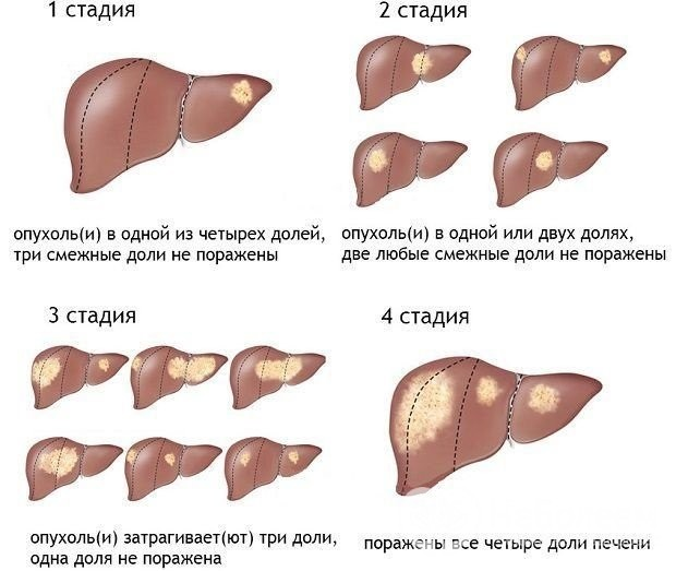 Что такое гемангиома печени и как с ней бороться