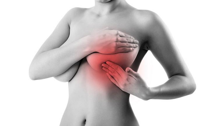 Внимание на грудь. Опасна ли мастопатия?