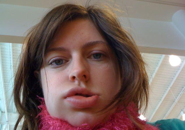 Отёк Квинке - как не умереть от аллергии?