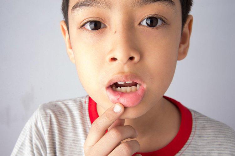 Как лечить стоматит у детей медицинскими и народными методами