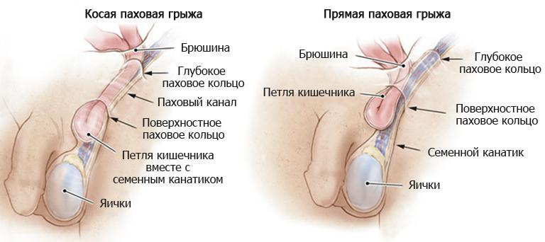 Чем опасны паховые грыжи? - Лечение паховой грыжи у мужчин