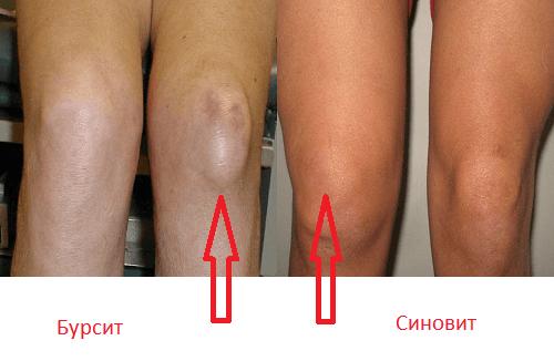 Эффективные методы лечения бурсита коленного сустава