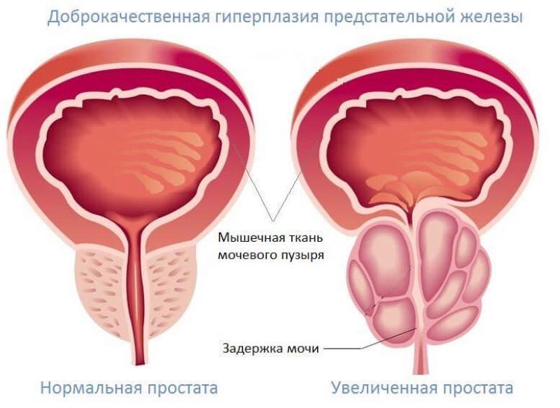 Чем опасна аденома простаты - симптомы проблем с предстательной железой