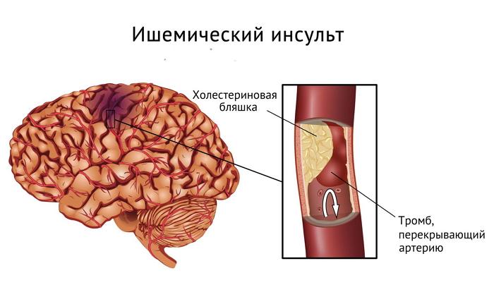 Первая помощь при ишемическом инсульте головного мозга - лечение и реабилитация