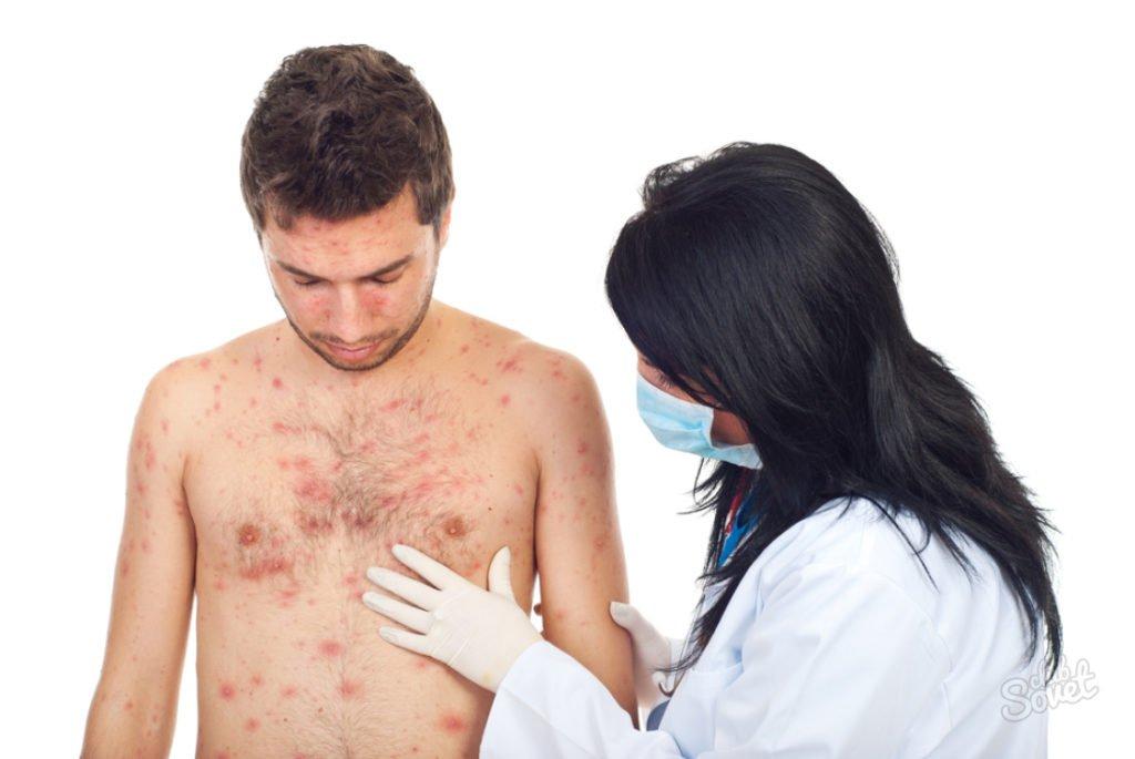 Герпес на теле: главные симптомы, методы лечения и профилактики