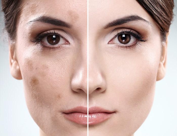 Как избавиться от пятен после прыщей - идеальная кожа без проблем