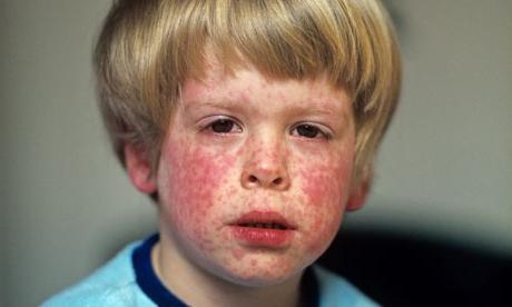 """""""Детский"""" вирус , или как вовремя распознать и лечить краснуху"""