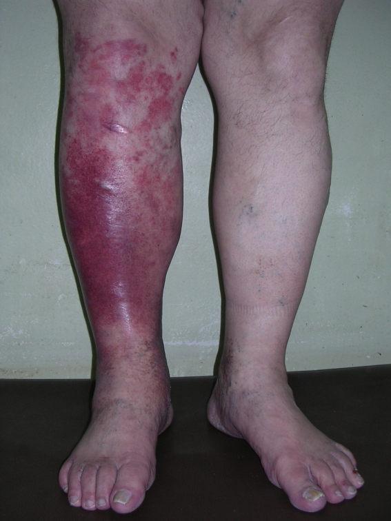 Рожа - самое коварное кожное заболевание