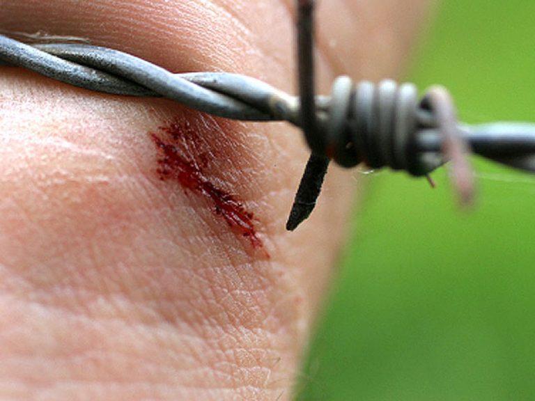 Столбняк - всё что нужно знать об опасном недуге