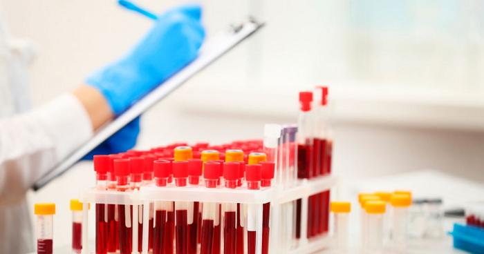 Биохимический анализ крови — норма и расшифровка