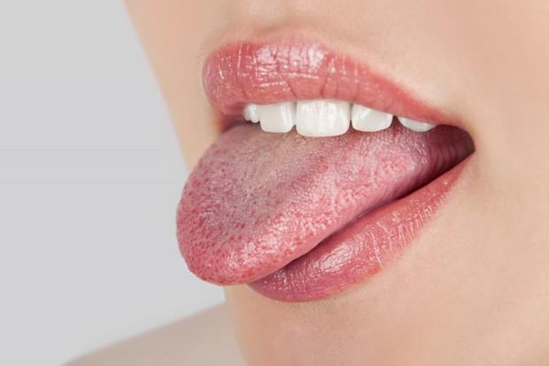 Белый налет на языке - признак какой болезни