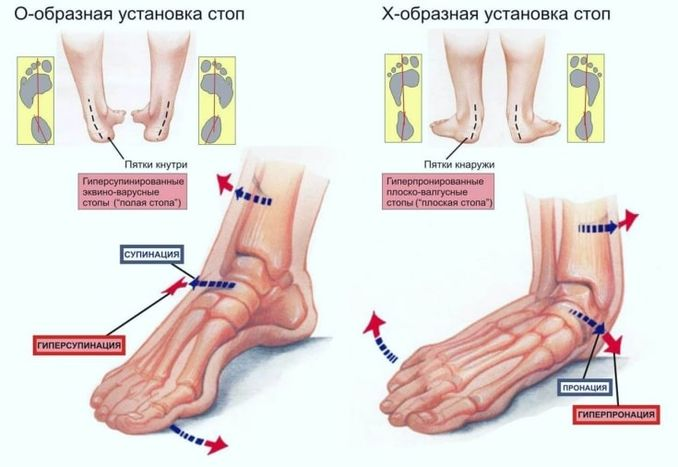 Деформация стопы от нагрузок на ноги