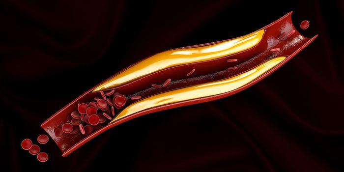 Ишемическая диабетическая стопа