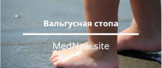 вальгусная стопа