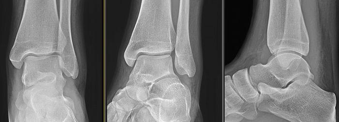 Рентгеновский снимок вильгусной стопы